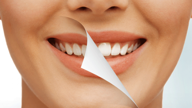 Complications of Teeth Bleaching