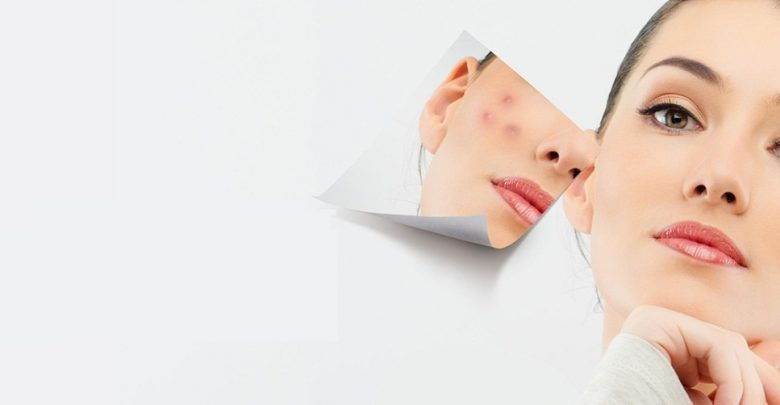 Understanding the Merits Offered by a Laser Skin Clinic