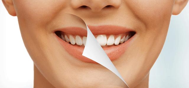 Complications of Teeth Bleaching